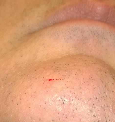 Name:  The wound.jpg Views: 205 Size:  23.2 KB